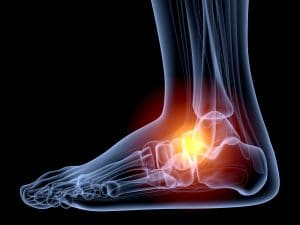 ankle sprains, Dr. Kevin Crawford, Lubbock Sports Medicine