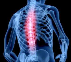 5 Tips to alleviate back pain, Lubbock Sports Medicine, Dr. Kevin Crawford Orthopedic Surgeon Texas
