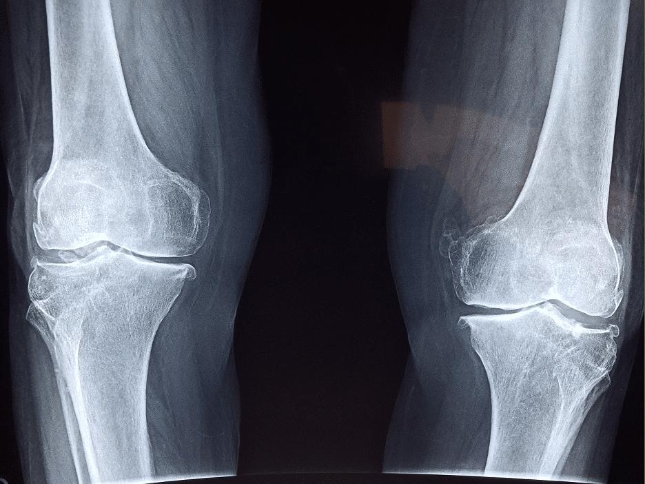 Blog image, Orthopedics